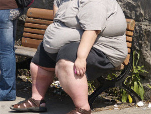 Ожирение — это опасное заболевание